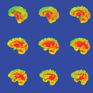 These slices of the brain illustrate a method of imaging that psychology researchers often use to find out where certain functions take place in the brain. Red indicates white matter, and yellow and green are gray matter.