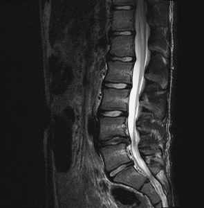 With the ultimate goal of designing artificial spinal discs, BYU mechanical engineers are using MRI to better understand the biomechanics of the human spine. This image shows a disc herniation.